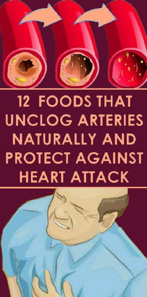 Healthy Foods To Reduce Clogging Of Arteries