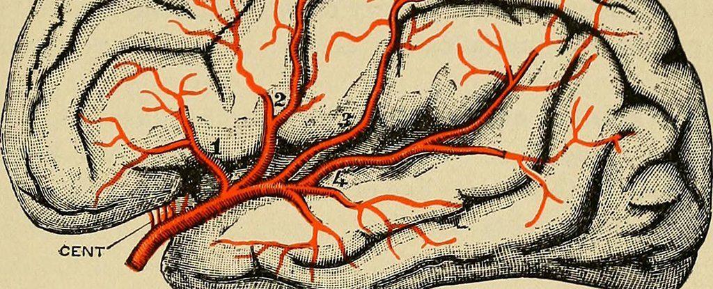parkinsons disease drawing