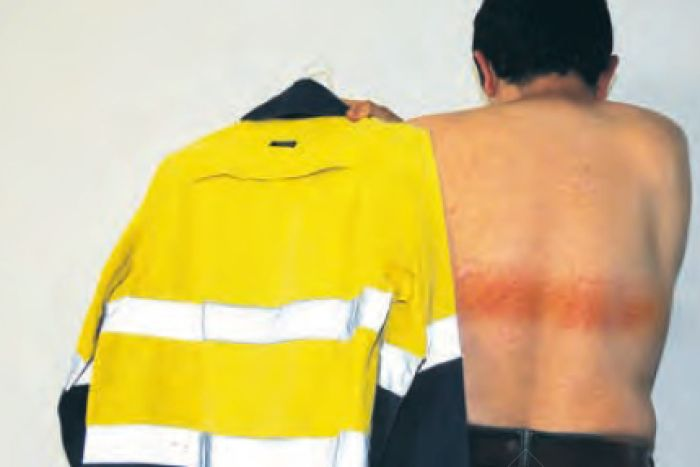 Engineer suffers first-degree burns from high-vis shirt, sparking medical warning