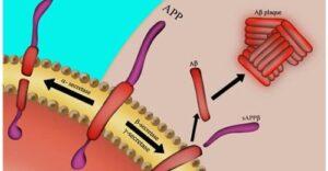 The Gut Alzheimer's Link