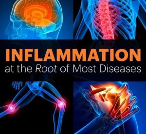 Inflammation-The Root Of Most Diseases